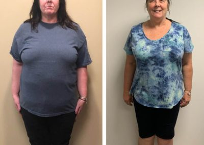 before-after-20-lbs-weight-loss