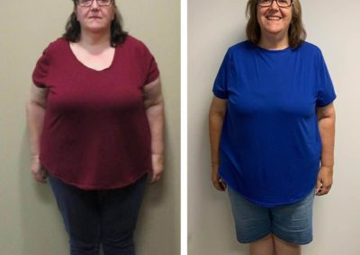 before-after-front-diane-45-lbs-weight-loss