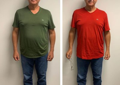 before-after-front-down-to-18-lbs