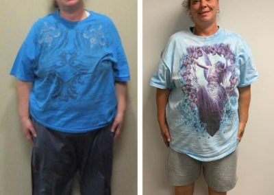 before-after-joan-26-lbs-weight-loss
