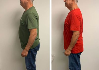 before-after-left-side-down-to-18-lbs