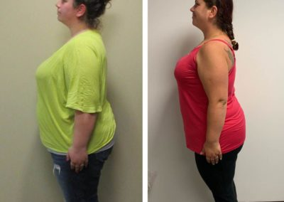 before-after-left-side-lauren-down-to-30-lbs