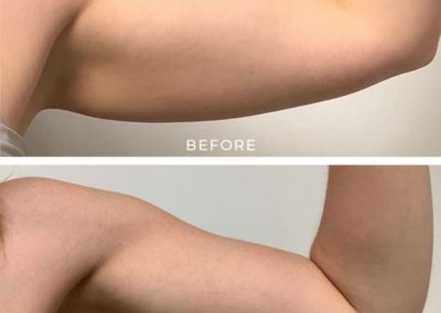 before-after-noninvasive-lipo