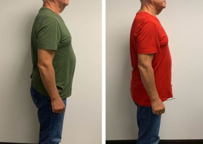 before-after-right-side-down-to-18-lbs