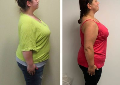 before-after-right-side-lauren-down-to-30-lbs
