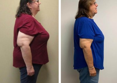 before-after-side-diane-45-lbs-weight-loss.jpg