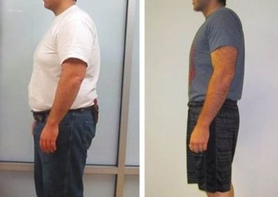 before-after-weight-loss
